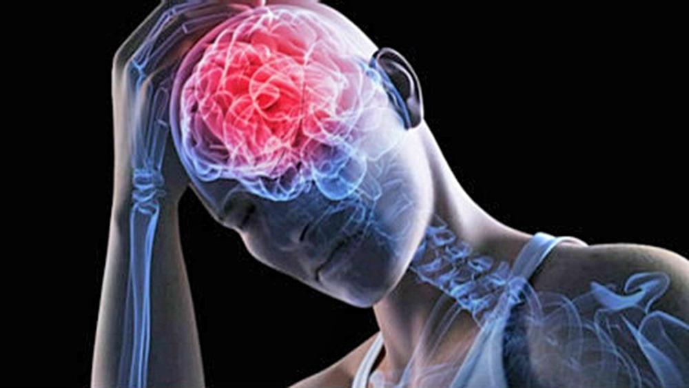 guia-derrame-cerebral