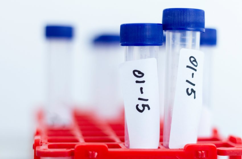 Solo seis muestras de COVID-19 ha tomado municipio de Querétaro durante primeros días de pruebas gratuitas